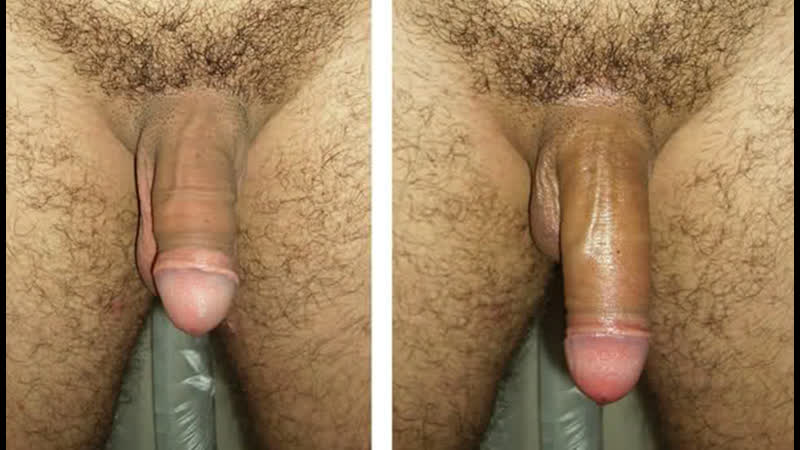 Penis enlargement without surgery using hyaluronic acid clinique chloe on vimeo