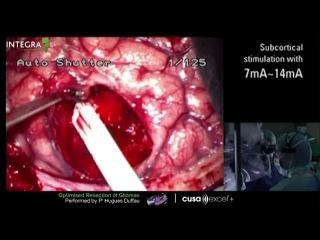 Operacija na mozgu, epilepsija - Cortical Stimulation