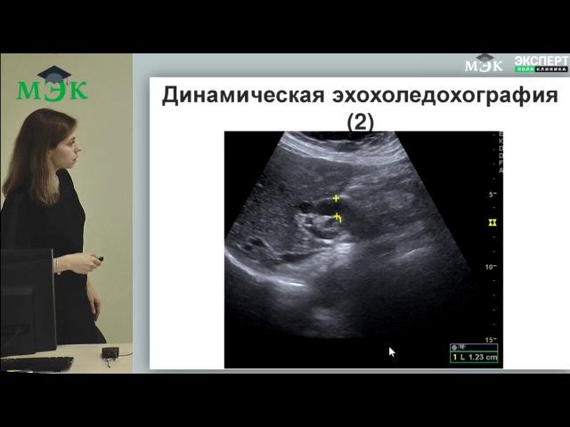 Постхолецистэктомический синдром и или дисфункция сфинктера Одди лекция для врачей