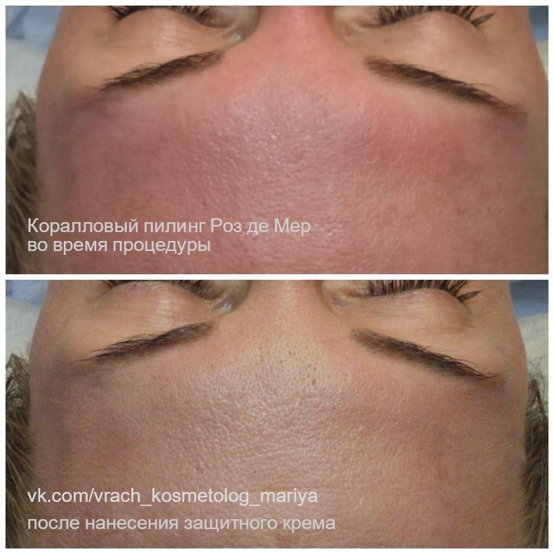 Подготовка кожи к пилингам. Виды пилингов. Действие кислот., изображение №4