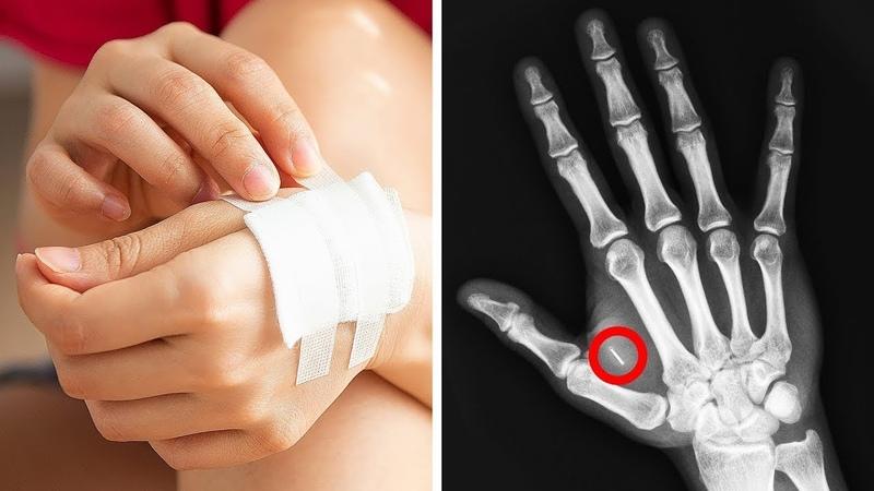 Смотрите, как опасно ходите: сгорел чип в руке