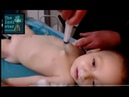 The White Helmets video and How to NOT correctly perform intracardiac injection
