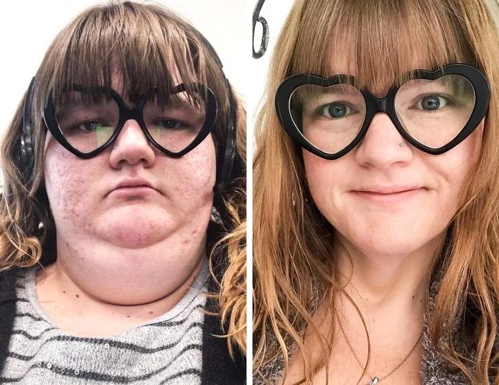 Примеры того, как сильно меняется лицо у похудевших