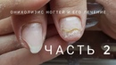 Oнихолизис часть 2 как вылечить онихолизис Что такое онихолизис Проблемные ногти