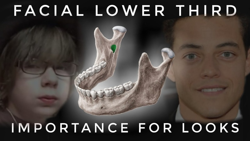 The Lower Facial Third And It's Importance for Looks
