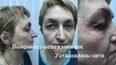 Как выглядит лицо до и после сеанса лазерной блефаропластики и лифтинга лица нитями.