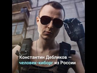 Человек-киборг из России