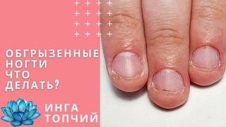 Обгрызенные ногти. Наращивание на обгрызенные ногти.